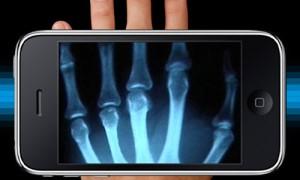 x-ray-hand-300x180